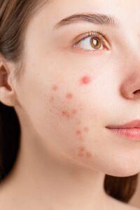 Lymphdrainage und Akne